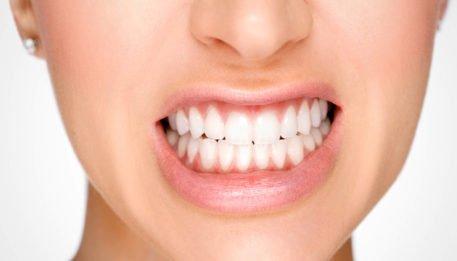 bruxismo-tratamento-odontologico