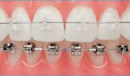aparelho-dentario-ortodontia-estetica
